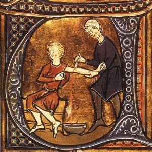 16th century bloodletting – Health and Fitness History
